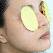 how to get rid of gray under eyes